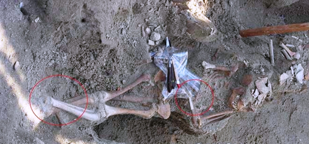 3 skeleton with hands and legs bound found yesterday also at Sathosa Mass Grave